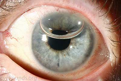 Donaghy CL, Vislisel JM, Greiner MA. An Introduction to Corneal Transplantation. May 21, 2015; Available from: http://EyeRounds.org/tutorials/cornea-transplant-intro/